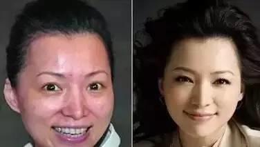 做美容与不做美容的差距